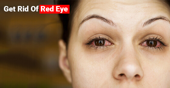 Get Rid Of Red Eye
